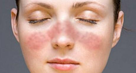 Il 10 maggio è la Giornata mondiale contro il Lupus