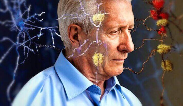 Alzheimer, la predisposizione inizia già da bambini. Le cause nell'articolo.