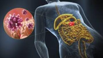 Influenza intestinale 2019 : cosa fare, cura e sintomi.